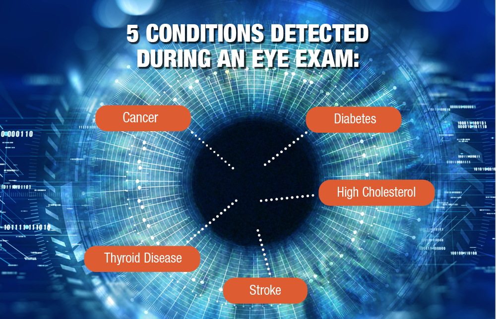 Want to Get Insights on Your Overall Health? Get an Eye Exam.